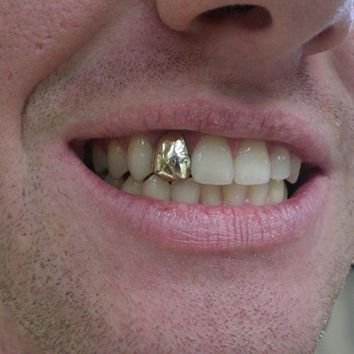 сонник золотые зубы у знакомого мужчины