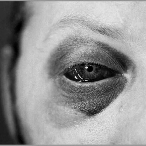кто такие как снять отек с гемотомы глаза раньше пенсионеры другие