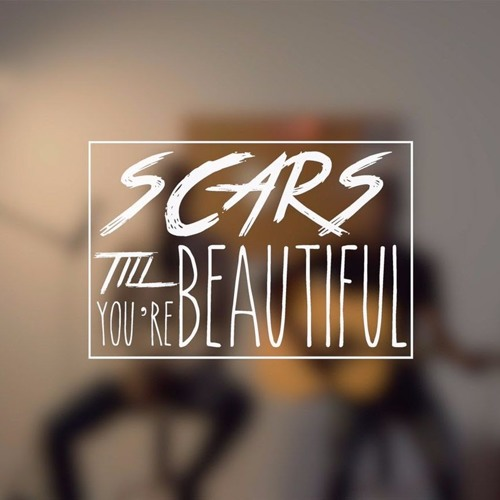 Alessia Cara - Scars To Your Beautiful (Older Grand Remix)