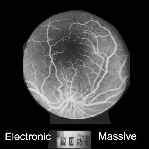 Electronic Massive