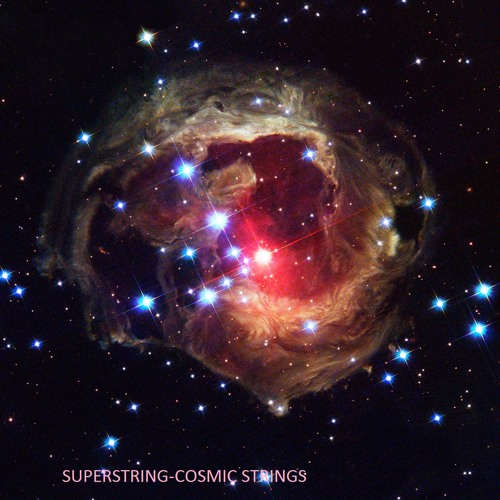 Superstring-Cosmic Strings