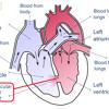 Recording of 5/6 heart murmur before surgery