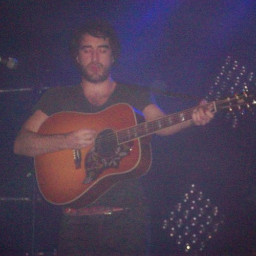The Coronas - Uncovered Unplugged