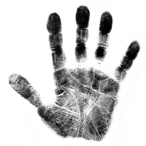 MY HAND HURTS
