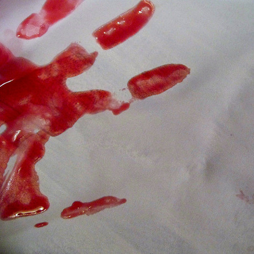 White Gloves and Bloody Hands