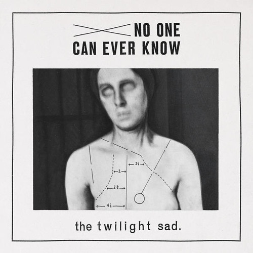"""The Twilight Sad, """"Another Bed"""""""