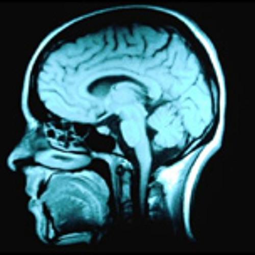 Mind kinesis