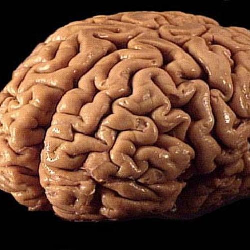 Brain is blocked ©