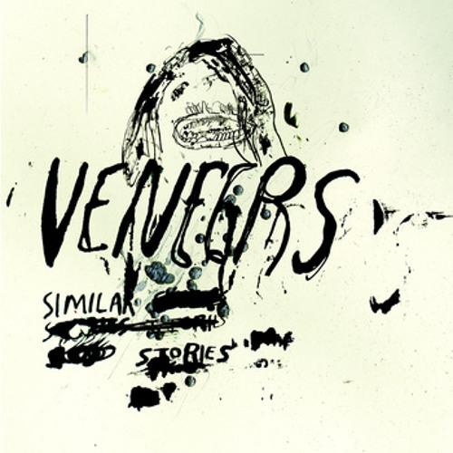Veneers - Similar Stories