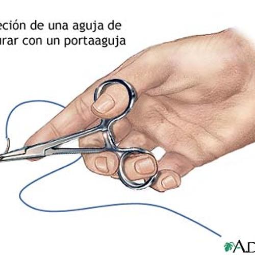 sutura de invierno.