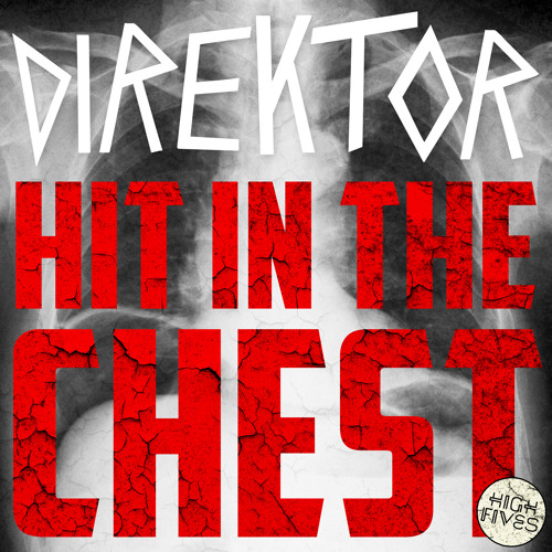 Direktor - Hit in the Chest [Free Download!]