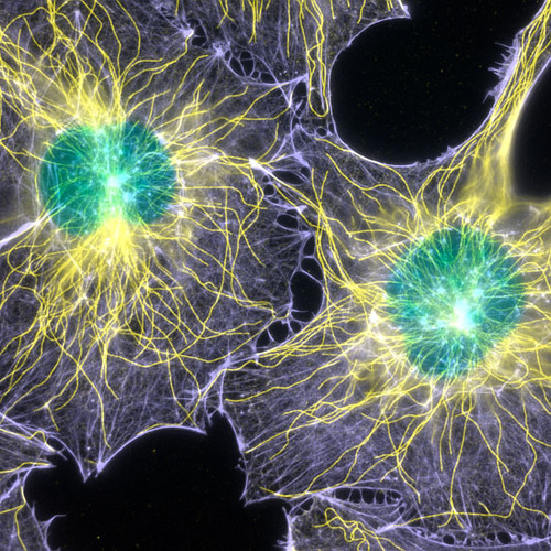 Bomakot - Microscopic Experience