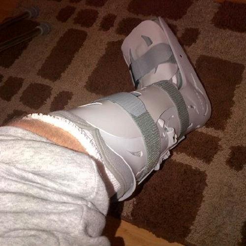 Broken Leg