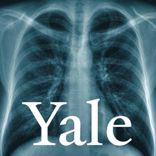 Yale Healthcast: Ticks