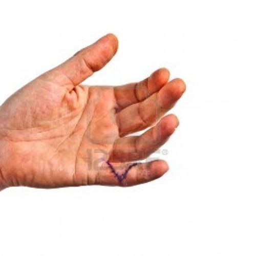 Clean wound