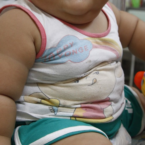 Overweight children lose weight at Temple Street