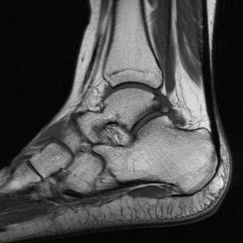Pierrot (Podcast) #2-Broken Ankle