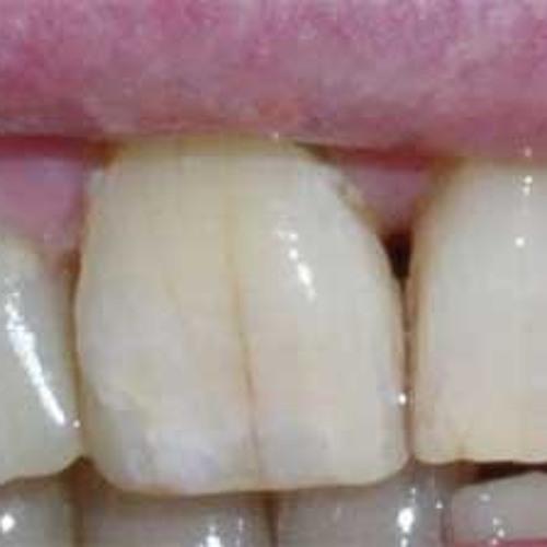 Fekix - Shattered Teeth