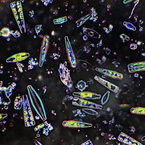 A Strange Dream about Diatoms & Plankton