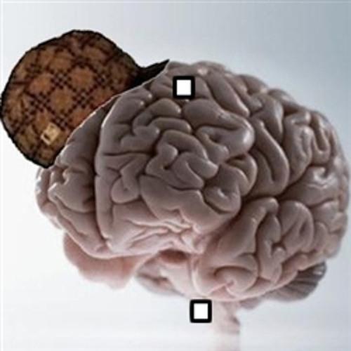 Xelerot - Mind Games