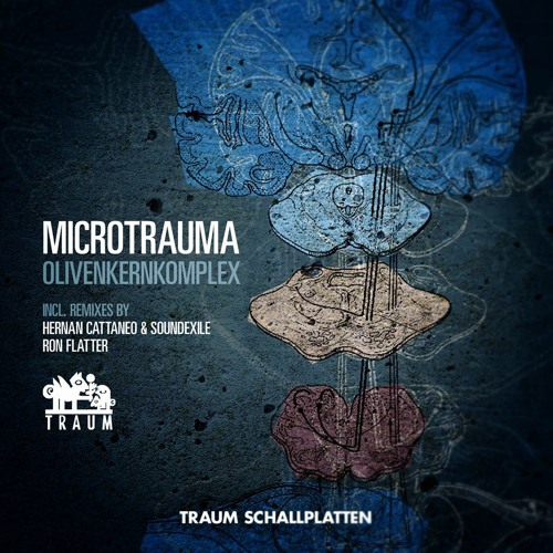 Microtrauma - Cortex (Ron Flatter Remix) Traum V166