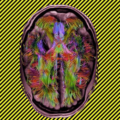 Brain Snatcher