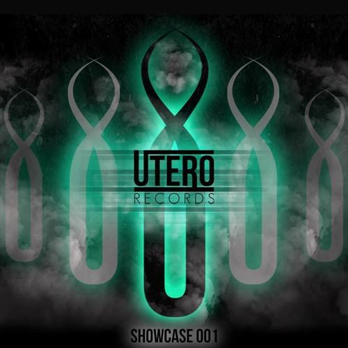 ShadowDubz - Juice [WIP] [OUT NOW - UTERO RECORDS SHOWCASE 001]