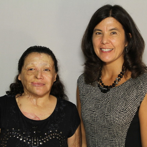 StoryCorps Chicago: After a dark period, survivor of acid attack finds the strength to go on