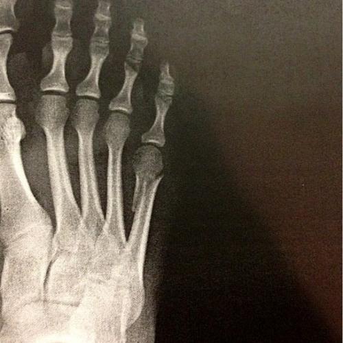 adriennes foot