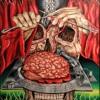 Trepanation Of Skull