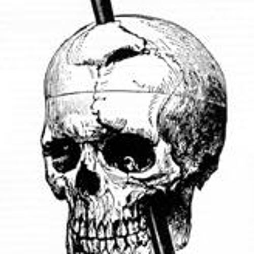 Front Cranal Injury