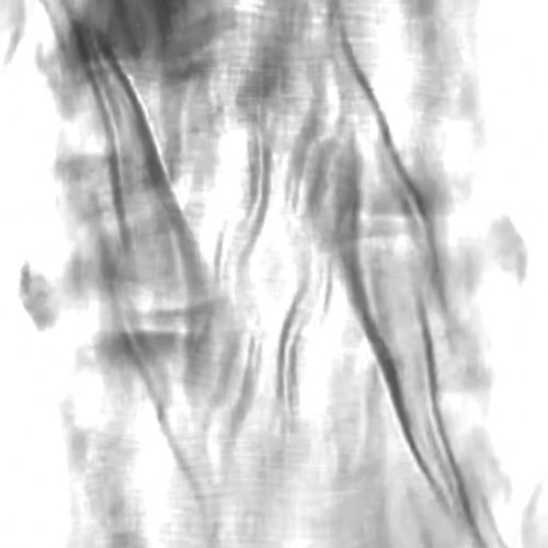 Arboria Auralist - Fevered Remembrances of Mechanistic Emotions [february acid pattern]