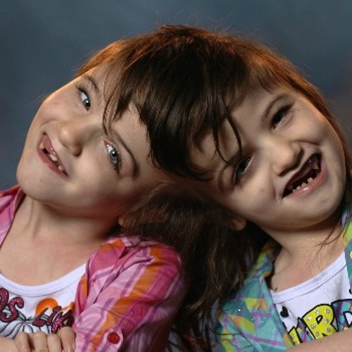 What eating is like for conjoined twins who see, feel, and taste what the other can