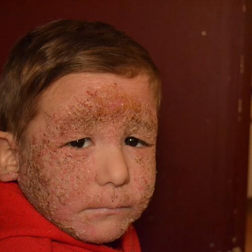 J. Diego Zarazua reports on Dylan Gastellum's severe skin condition