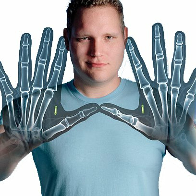 [S1E34] NFC, o implante vale a pena?