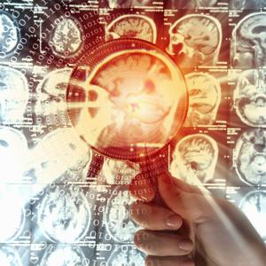 Így működik az agyad