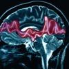 Crise d'épilepsie (vidéo link in description)
