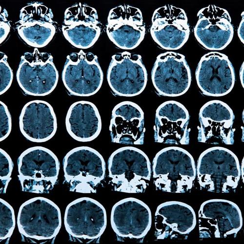 Unlocking Parkinson's Disease