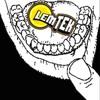 Major Upset - Trigger Finger