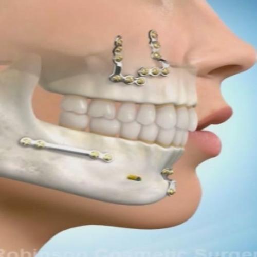 Chirurgia ortognatică - soluţia pentru realinierea mandibulei şi maxilarului