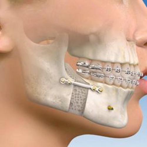 Ce beneficii are chirurgia ortognatica?