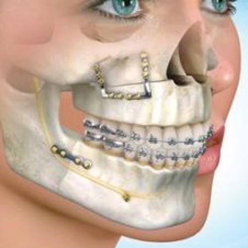 30% dintre români au mandibula subdezvoltată