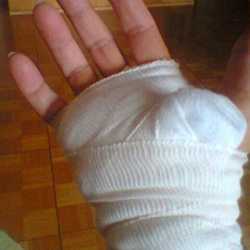 Hand Finger Karpaltunnel