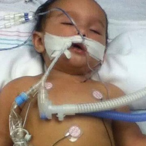 Infant Gets 8 Vaccine Doses At 6 Months - Collapses With Brain Damage