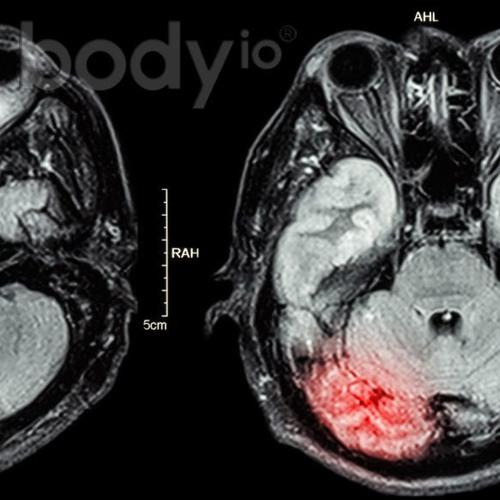 GYMLAIRD 06 - Dr. Tim Rogers - Brain Injury and Stress Management