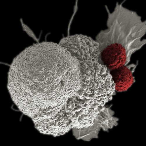 n=9 Cancer immunotherapy part 2: On the cusp of something great