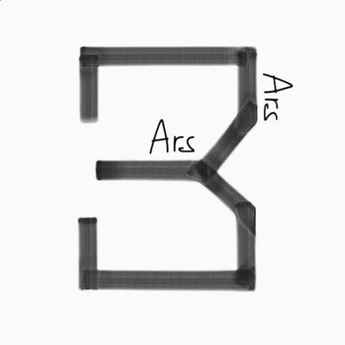 TRAUMA - Ars(GOT7-영재)(Prod.by 주찬양)