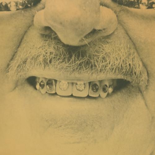 Audio Story: Diamonds on his Teeth