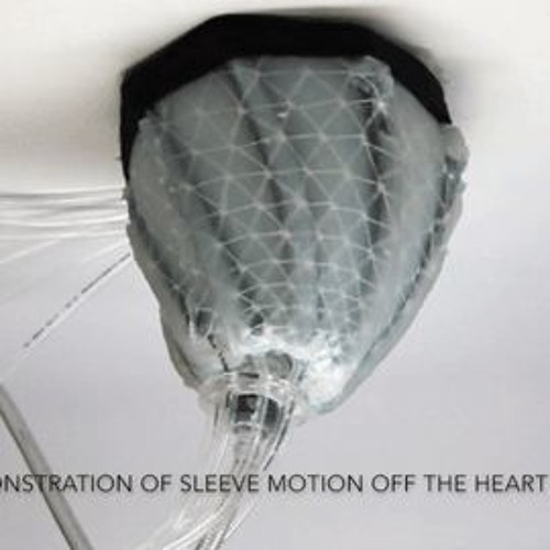 Soft Robots Mimic Muscle to Expand the Body's Limits