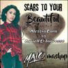 Alessia Cara-I love Your Scars, Beautiful- Malo Mashup-Extra SC Long Intro